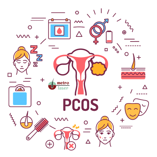 PCOS Hair Removal Glasgow
